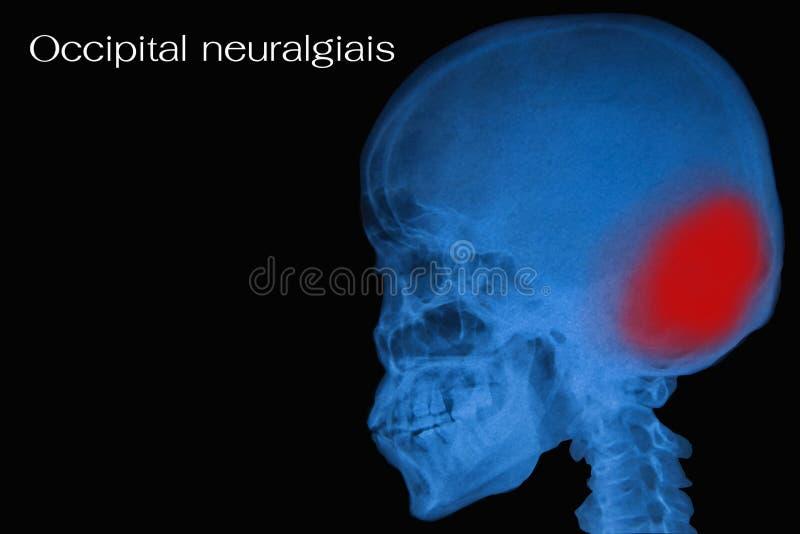 Filmröntgenstråleskalle av människan royaltyfria foton