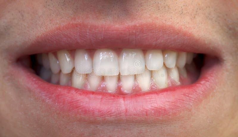 Boca e dentes imagens de stock royalty free