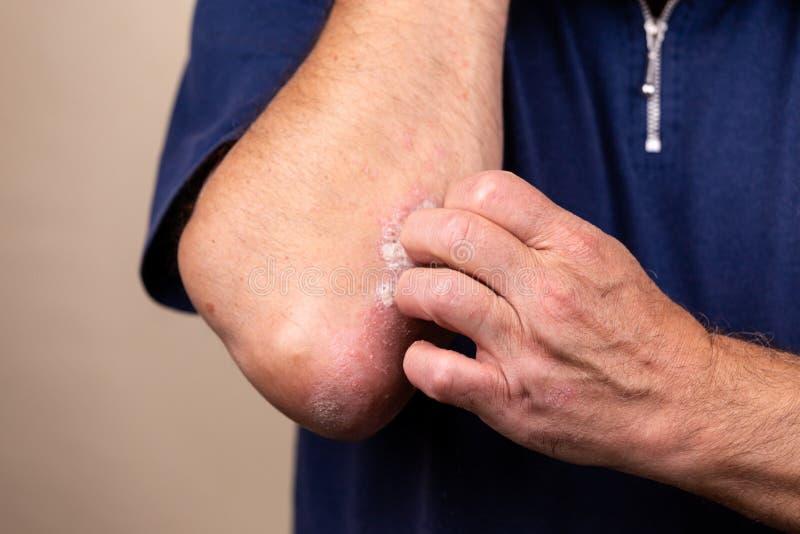 Fim acima da dermatite na pele, eczema alérgica doente da dermatite do prurido da textura do detalhe da pele do sintoma da dermat fotos de stock royalty free