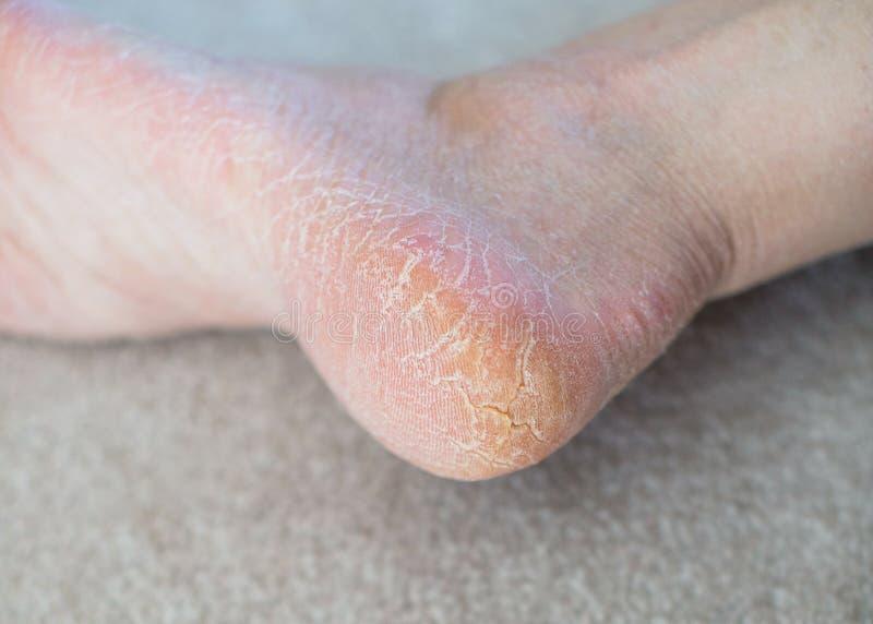 Fim acima dos saltos rachados Problemas de saúde com pele nos pés foto de stock