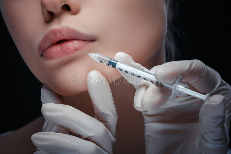Fin détaillée vers le haut de vue d'une injection de lèvre photographie stock