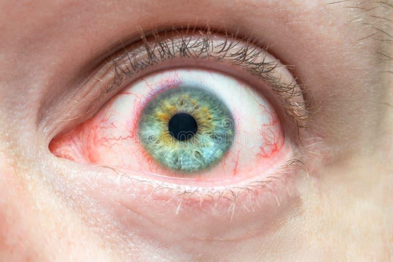 Fin rouge irritée de l'oeil des hommes, problèmes avec des vaisseaux sanguins, conjonctivite chronique de fatigue photo libre de droits