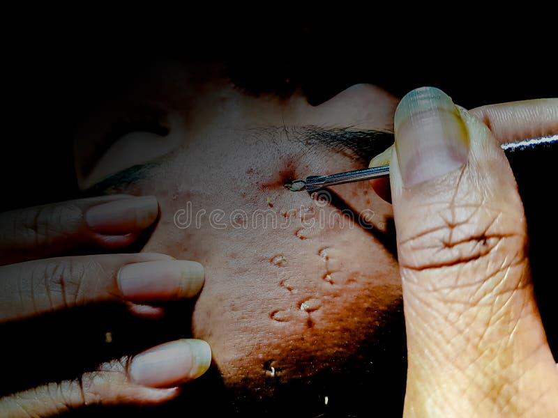 Fine su del bastone di rimozione dell'acne di uso della mano della donna per rimuovere i brufoli del whitehead sulla fronte femmi immagine stock