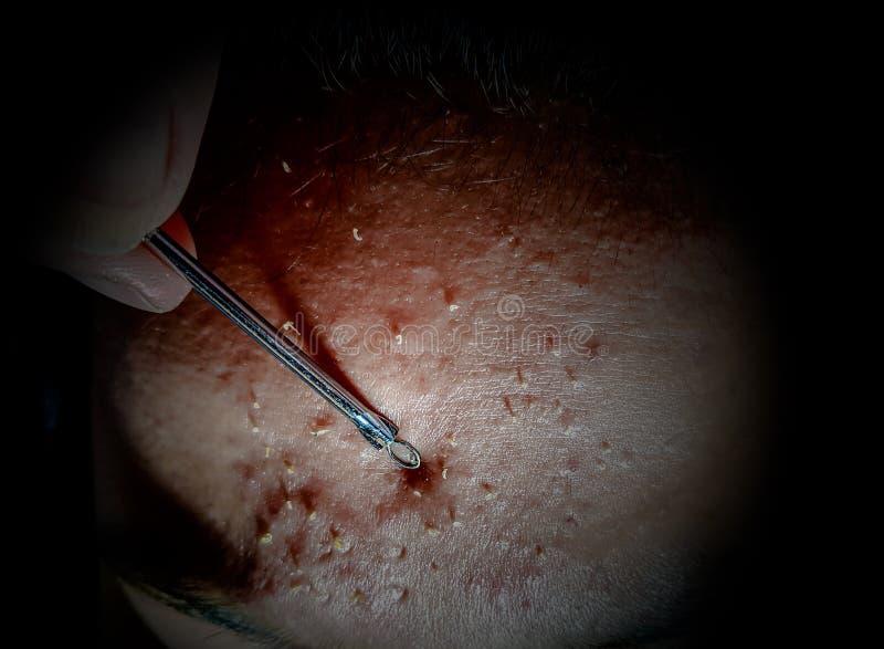 Fine su del bastone di rimozione dell'acne di uso della mano della donna per rimuovere i brufoli del whitehead sulla fronte femmi immagini stock