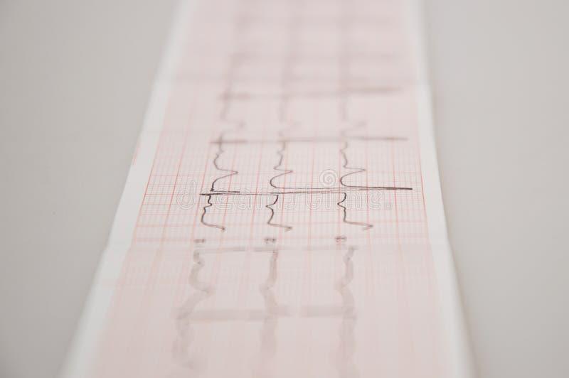 Fine in su Ricerca medica Nastro di ECG con aritmia delicata immagine stock