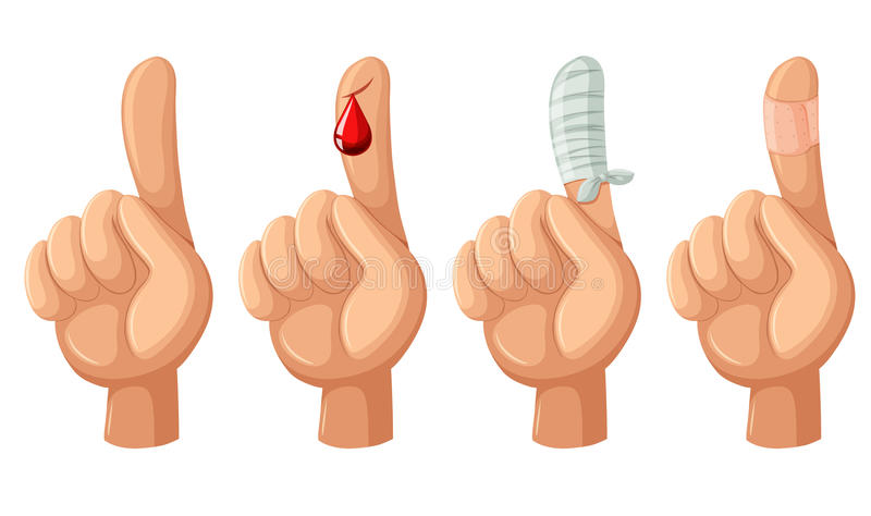 Finger with cut and bandages. Illustration royalty free illustration