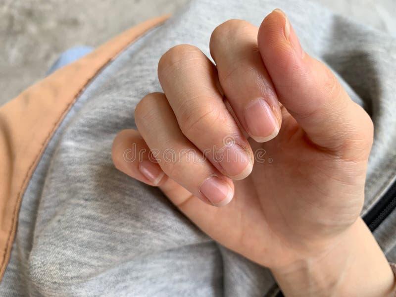 Finger der Frau sind der Nagelrand ist flockig, sollten an der Creme, Allergie der trockenen Haut angewendet werden trocken stockfotografie