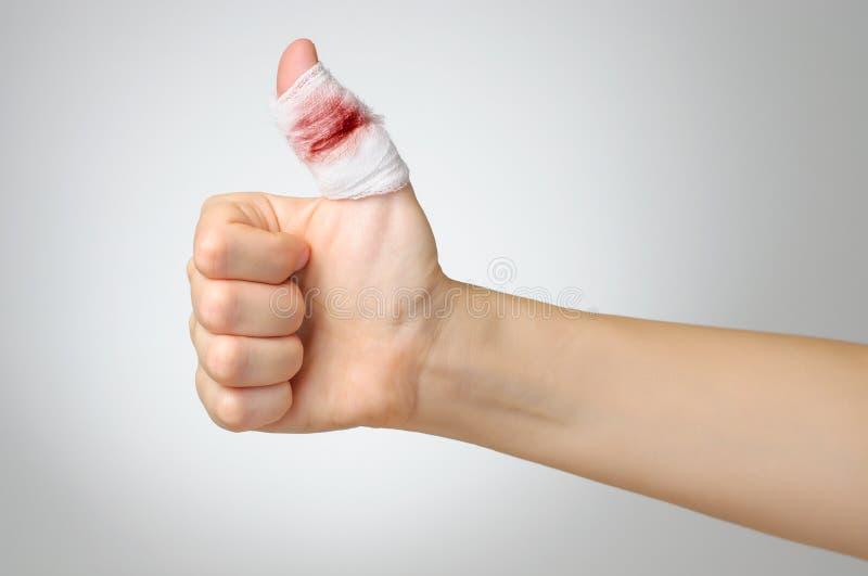 Finger herido con el vendaje sangriento foto de archivo libre de regalías