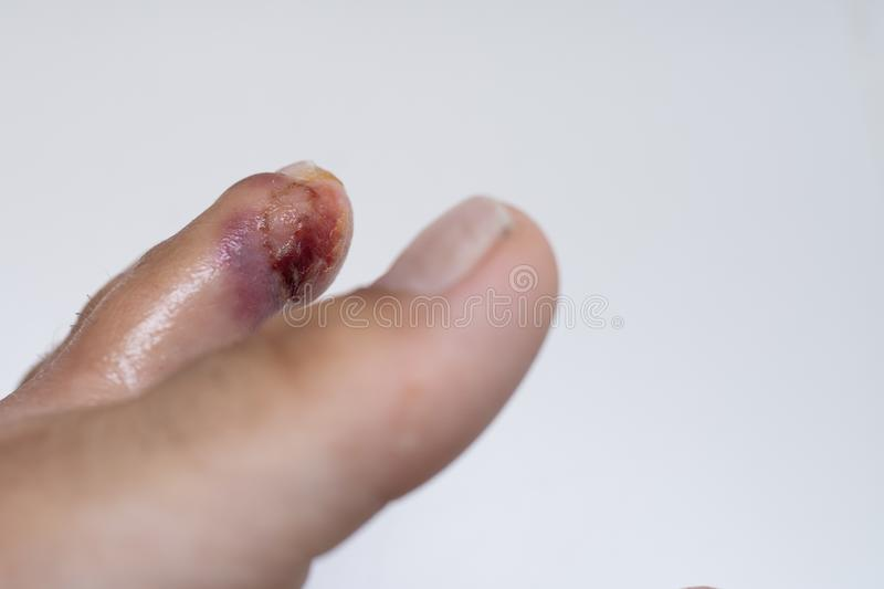 Finger on the leg. Purulent wound on the leg. Eczema. Dermatitis. Psoriasis. Finger on the leg. Purulent wound on the leg. Eczema. Dermatitis. Psoriasis stock images
