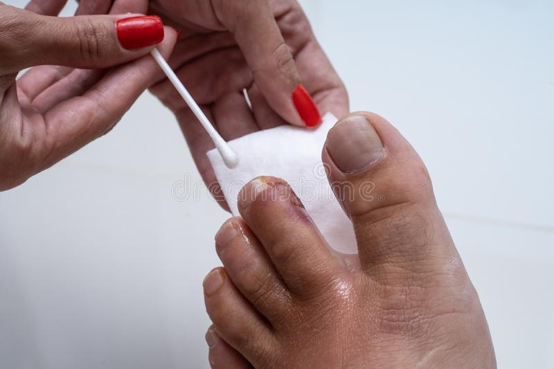 Finger on the leg. Purulent wound on the leg. Eczema. Dermatitis. Psoriasis. Finger on the leg. Purulent wound on the leg. Eczema. Dermatitis. Psoriasis stock image