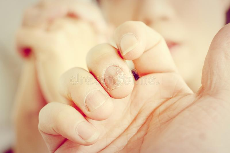 Finger med onychomycosis En tånagelsvamp - mjuk fokus royaltyfria foton