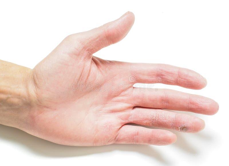 Finger mit angestecktem Schnitt, an Hand mit trockener Haut stockfotografie