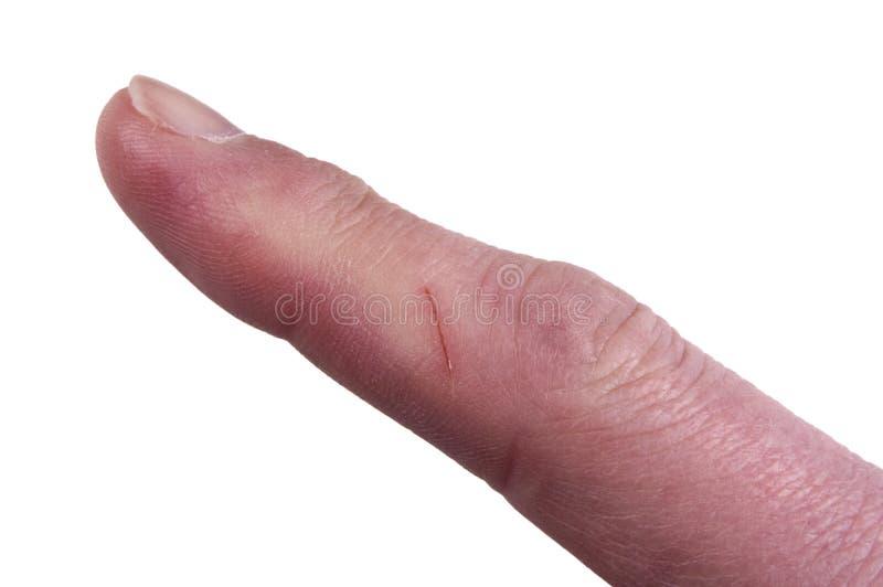 Finger mit Schnitt, Gefahr der Infektion, getrennt stockfotografie