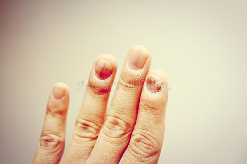 Finger with onychomycosis. A toenail fungus. - soft focus royalty free stock images