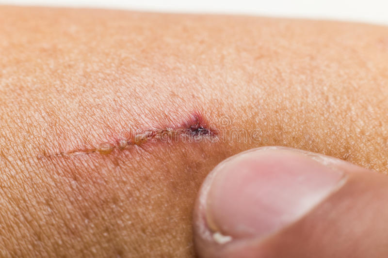 Finger pointing to a wound from a cut. Finger pointing to a wound on the hand from a cut royalty free stock photography