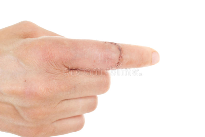 Finger with sewed wound. Caucasian finger with sewed wound stock photo