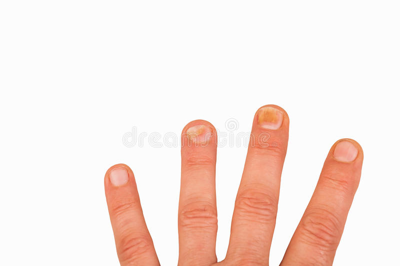 Fingernails with nail fungus stock images