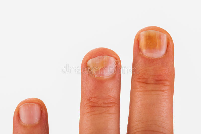 Fingernails with nail fungus royalty free stock image