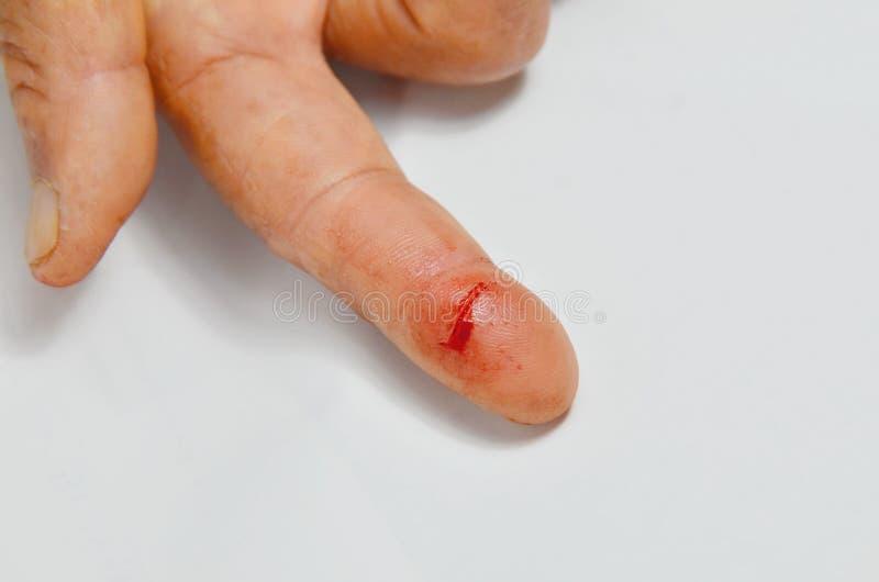 Fingerschnittwunde lizenzfreie stockfotografie
