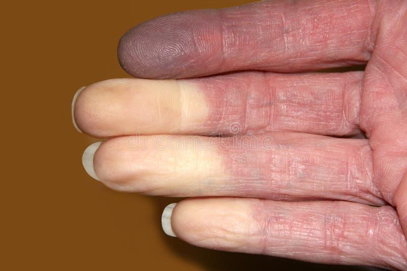 Fingrar vände vitt från den Reynaud sjukdomen royaltyfri fotografi