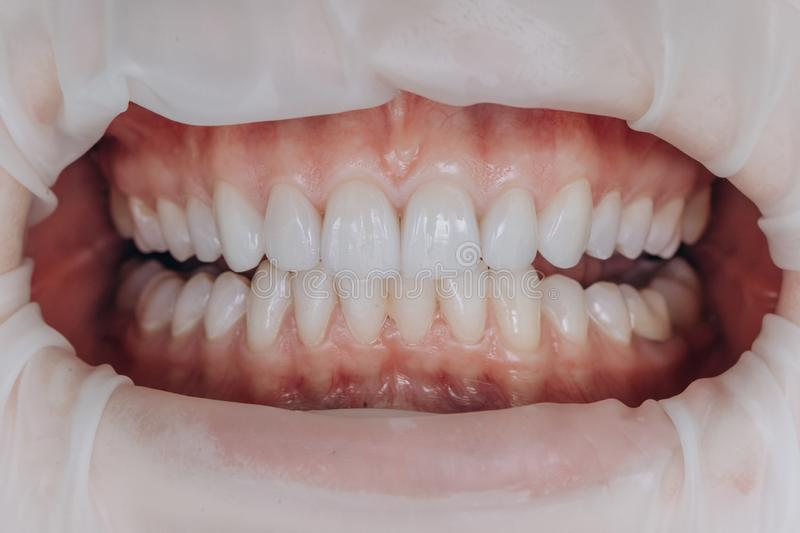 Finished ceramic front crowns. 8 units dental veneers. stock images