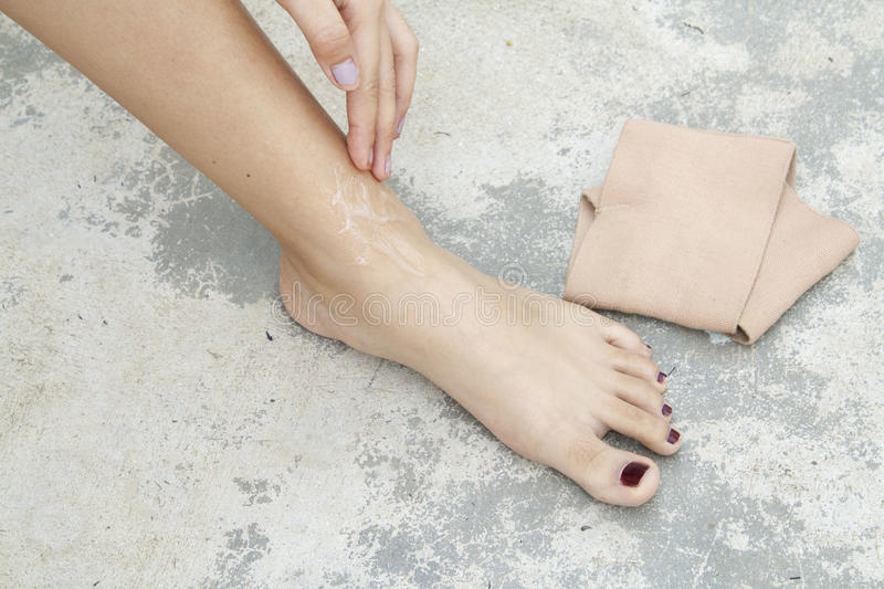 First aid accident wrist with liniment. At foot royalty free stock photos