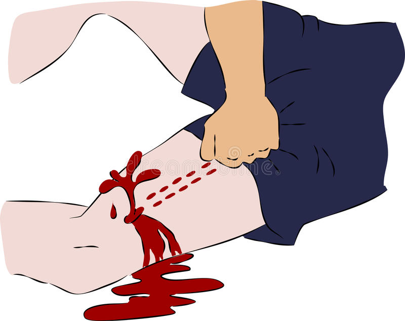 First aid - close blood flow from wound on leg. Vector vector illustration