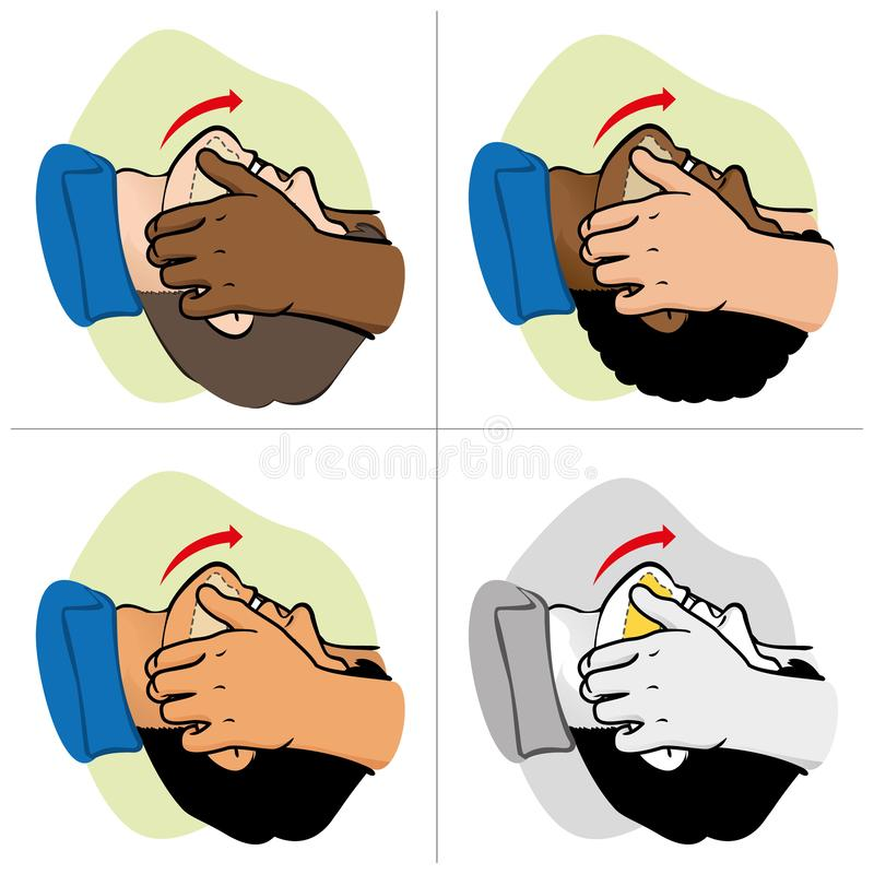 Free First Aid Person Opening The Mouth Clearing Airway, Ethnicities Royalty Free Stock Images - 162185809