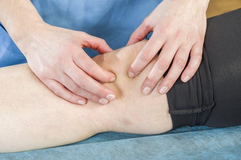 Fisioterapeuta, quiropráctico que hace una movilización patelar, dolor de la rodilla Ligamentos rasgados que tuercen imagenes de archivo