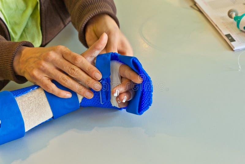 Fisioterapia de la mano para recuperar a fotos de archivo