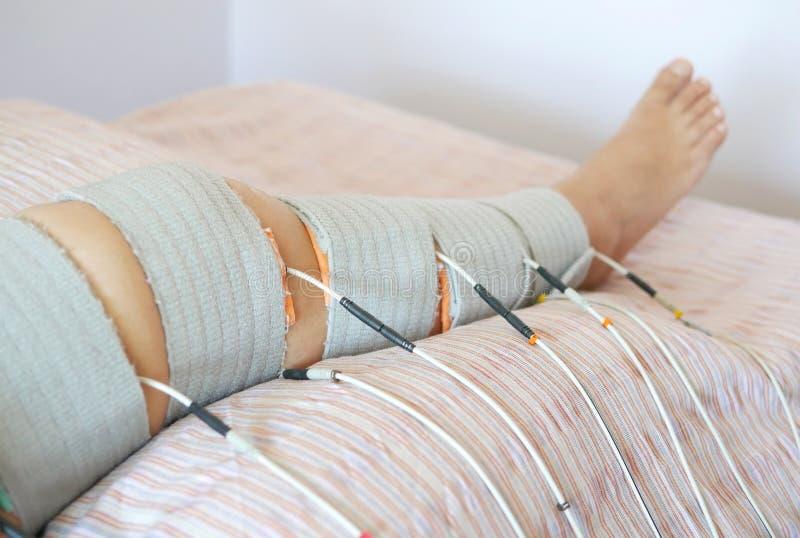 Fisioterapia e reabilitação pacientes do pé pela terapia do electrostimulation para diminuir a dor e melhorar a mobilidade imagens de stock