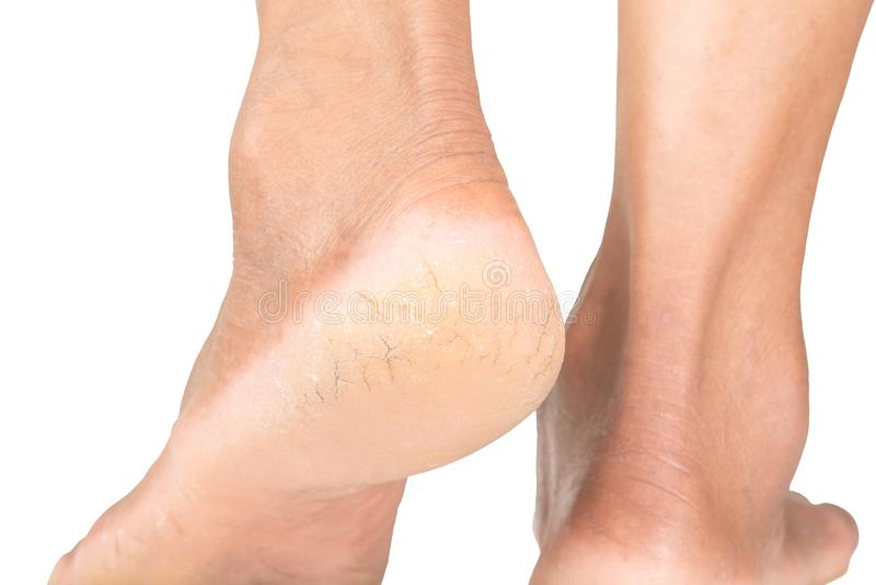 Fissures criquées de peau de talons, problèmes de peau photographie stock