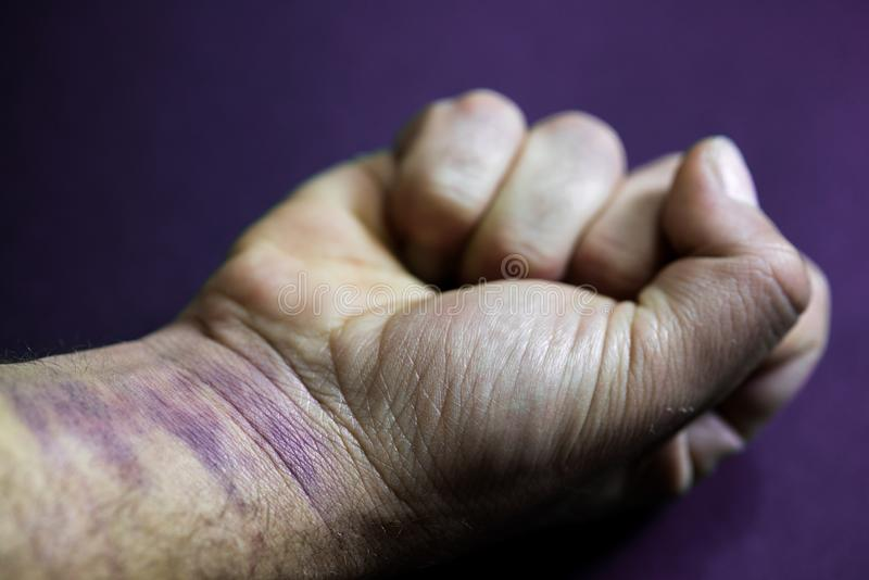 Fist closed, man`s arm with bruises on his hand and wrist. Gender violence concept royalty free stock photo