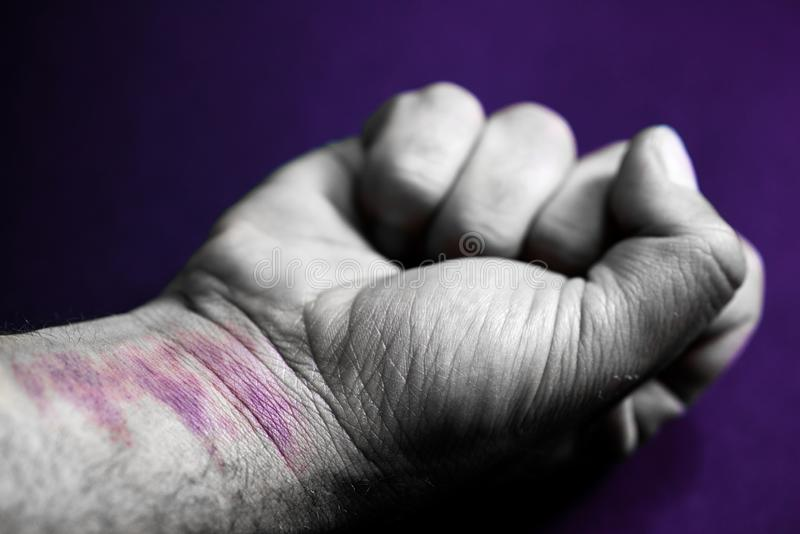 Fist closed, man`s arm with bruises on his hand and wrist. Gender violence concept stock images