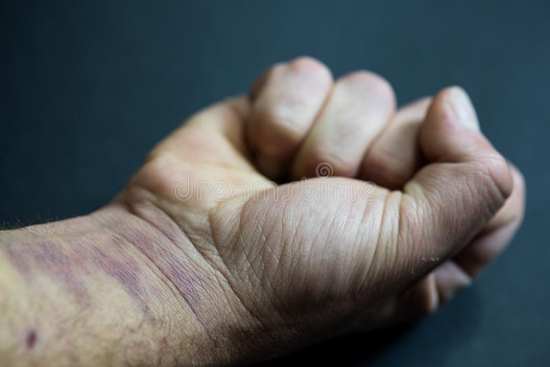 Fist closed, man`s arm with bruises on his hand and wrist. Gender violence concept royalty free stock image