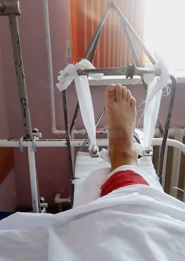 Fixação médica da fratura do pé no hospital imagens de stock