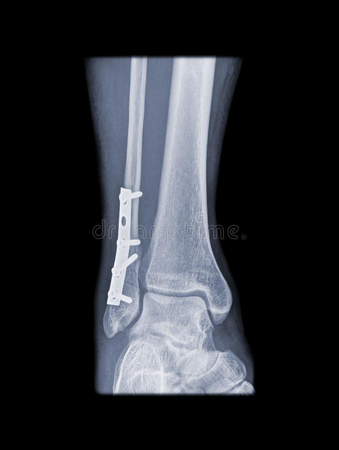Download Fixed Weber B Fracture Stock Photos - Image: 13617623
