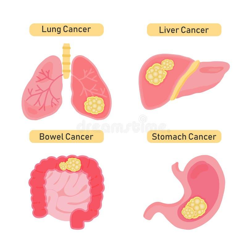 Alle Krebsarten