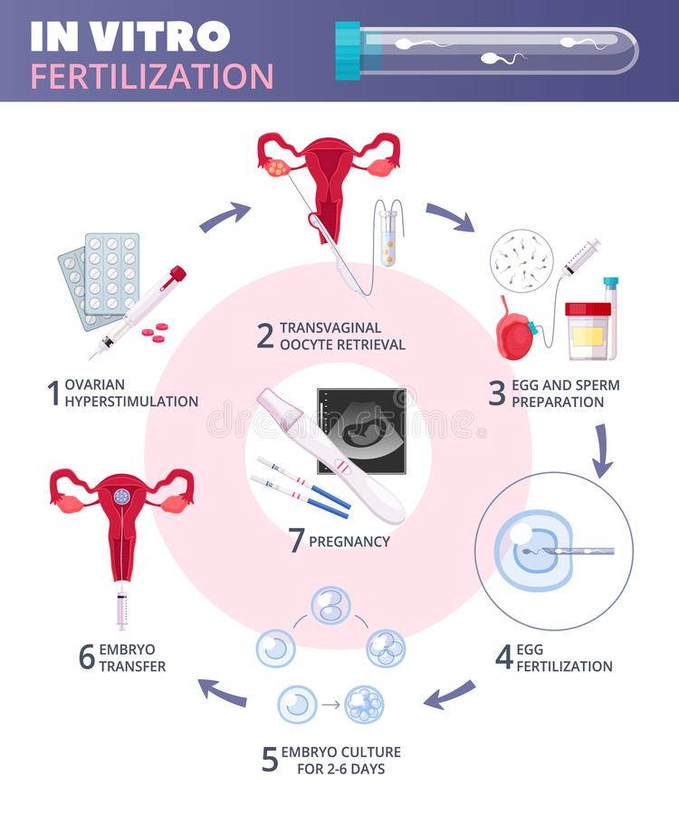 Flat In Vitro Fertilization IVF Infographics. Colored flat in vitro fertilization IVF infographics with steps from ovarian huperstimulation to pregnancy vector royalty free illustration