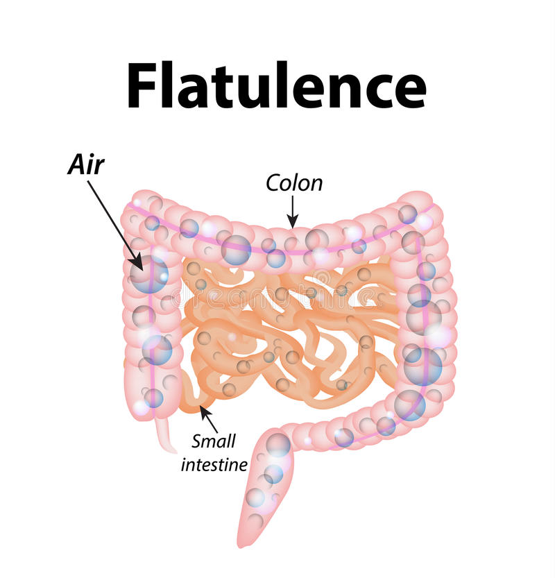 flatulencia Gases en el intestino delgado Los gases en los dos puntos ilustración del vector