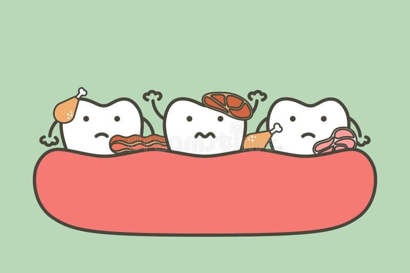 Fleisch gehaftet in den Zähnen, in der Ursache des Zerfallzahnes und im Mundgeruch vektor abbildung