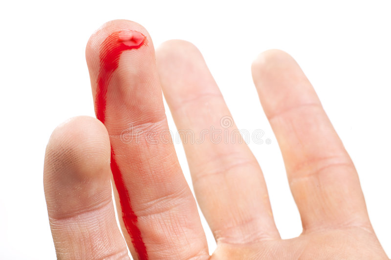 Flesh wound royalty free stock images