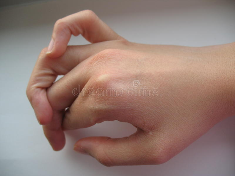 Flexible fingers. A hand with a super flexible fingers on top of each other. Hypermobility describes joints that stretch further than normal royalty free stock image
