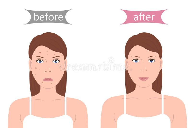 Flicka med akne före och efter vektor illustrationer