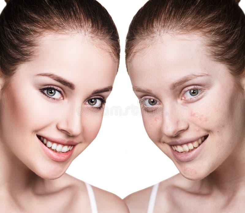 Flicka med behandling för akne före och efter royaltyfri fotografi