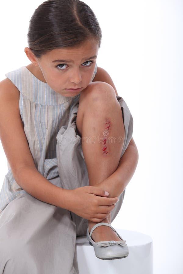Flicka med ett såradt ben royaltyfria foton
