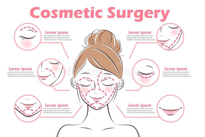 Flickan med kosmetisk kirurgi royaltyfri illustrationer