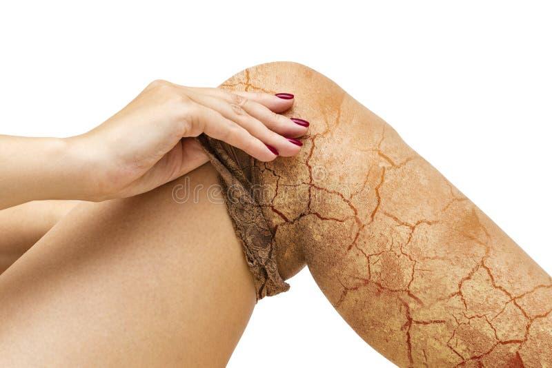 Flickan tar av hennes strumpbyxor med torr hud Sprickor i huden av benen royaltyfri foto