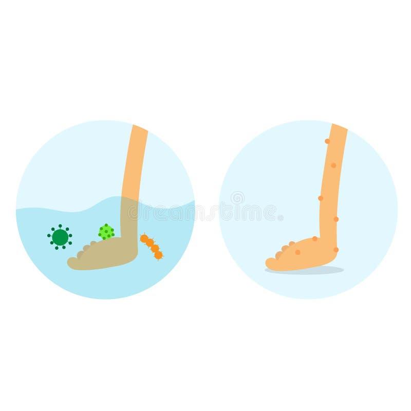 Flodsjukdom Infacted fot Bakterier i vatten smutsigt vatten stock illustrationer