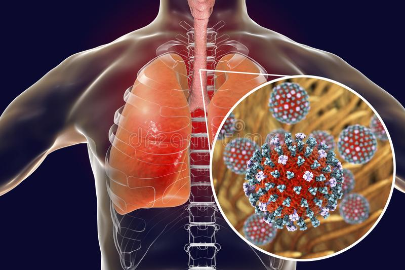 Flu viruses in human lungs stock illustration illustration of download flu viruses in human lungs stock illustration illustration of concept 113232996 ccuart Image collections